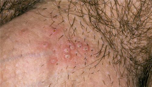 Biểu hiện của bệnh mụn rộp sinh dục