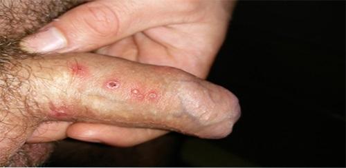 bệnh mụn rộp sinh dục ở nam