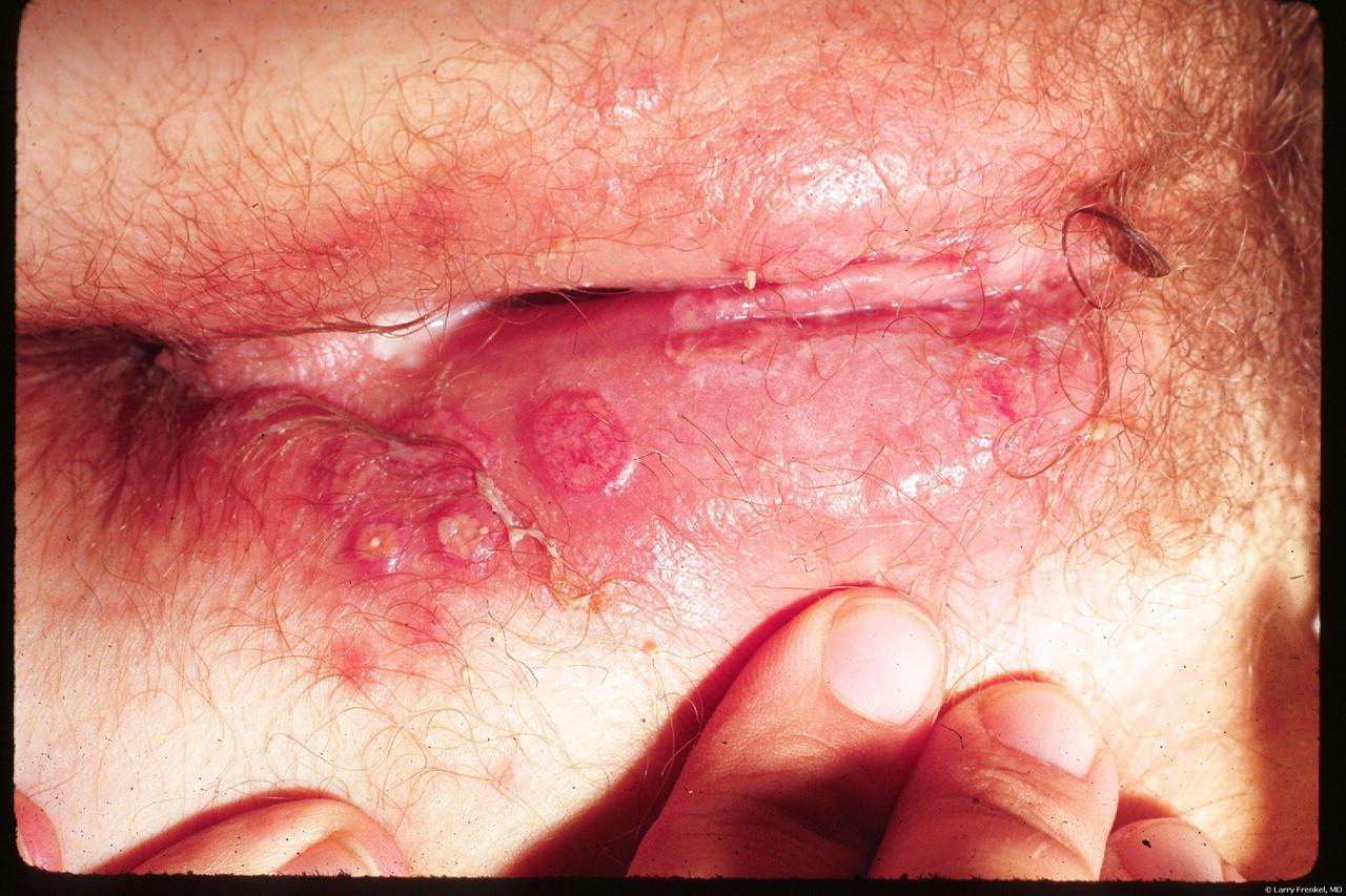 bệnh mụn rộp sinh dục ở nữ
