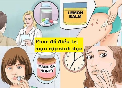 Phác đồ điều trị bệnh mụn rộp sinh dục