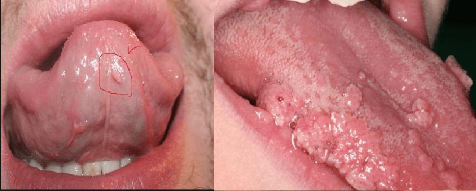 sùi mào gà ở lưỡi giai đoạn đầu