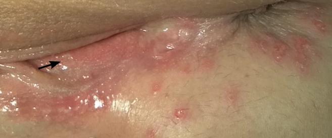 Bệnh mụn rộp sinh dục có những giai đoạn nào?