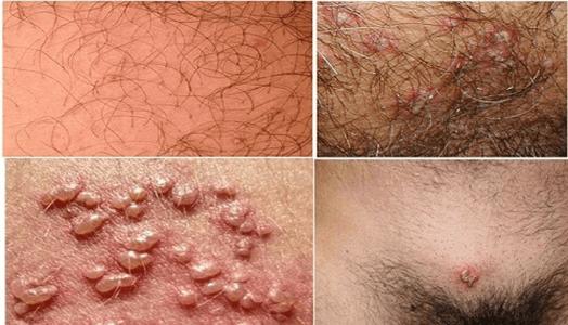 herpes sinh dục là gì ( nguyên nhân, dấu hiệu, tác hại, cách điều trị, cách phòng tránh…)