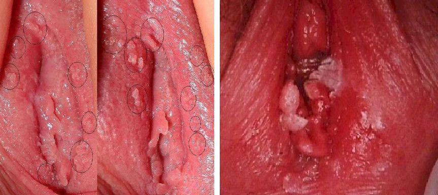 Hình ảnh mụn cóc sinh dục