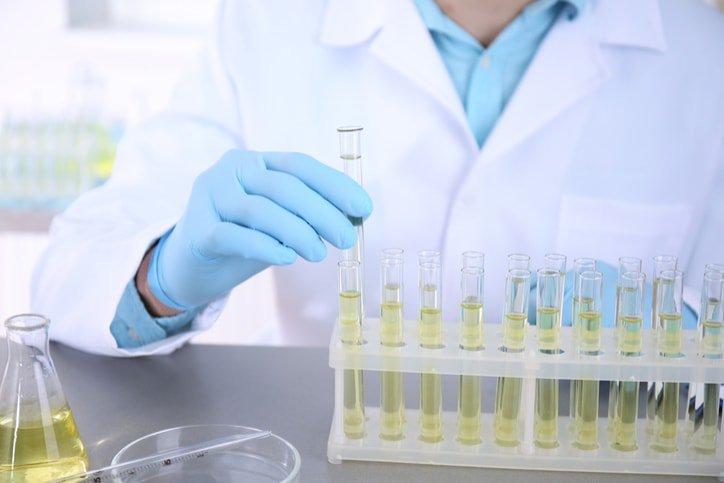 Xét nghiệm nước tiểu có phát hiện bệnh lậu?