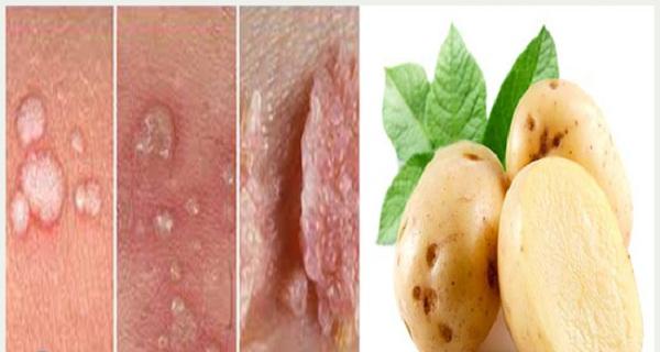 Cách chữa sùi mào gà bằng khoai tây