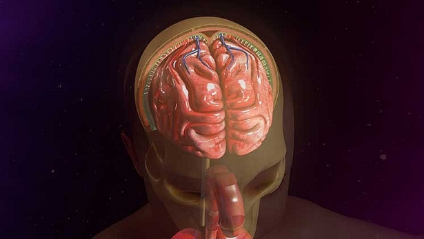 Bệnh giang mai thần kinh