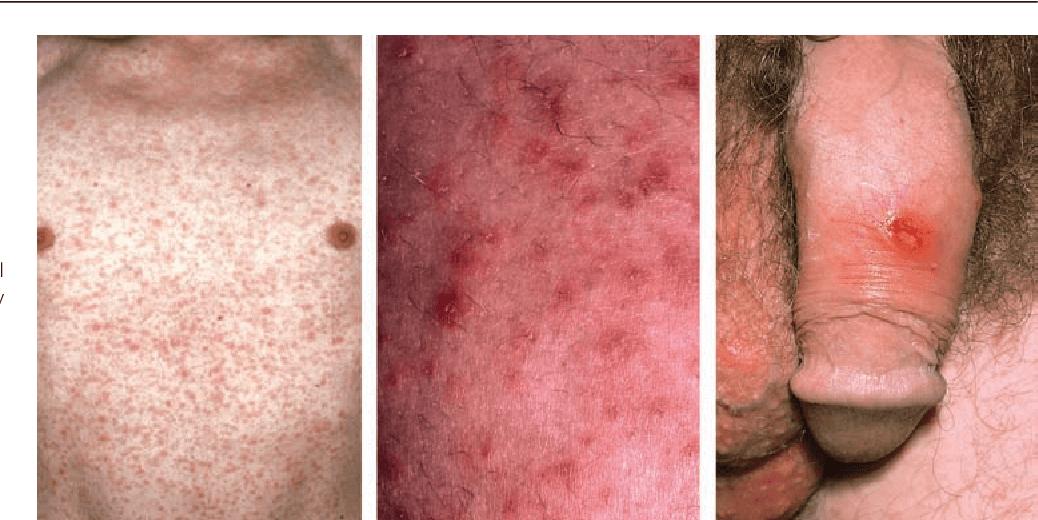 Các giai đoạn phát triển của bệnh giang mai