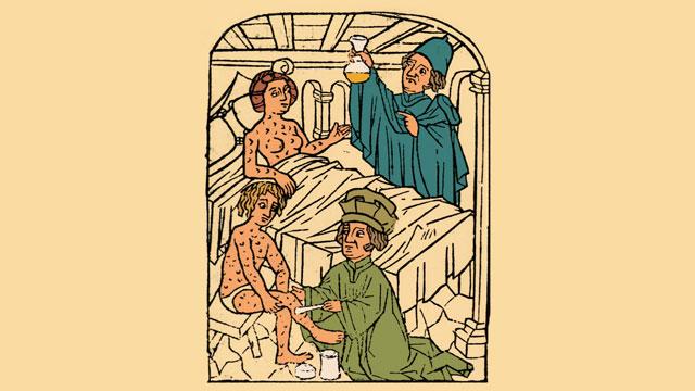 Lịch sử bệnh giang mai