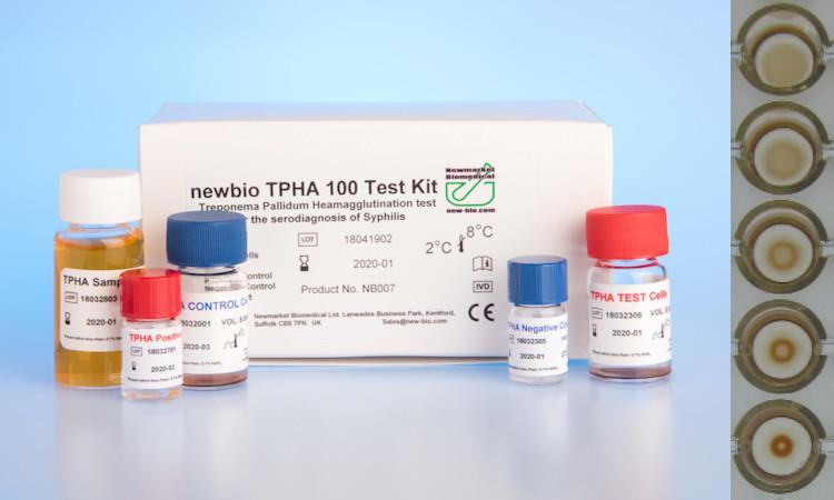Treponema pallidum test nhanh
