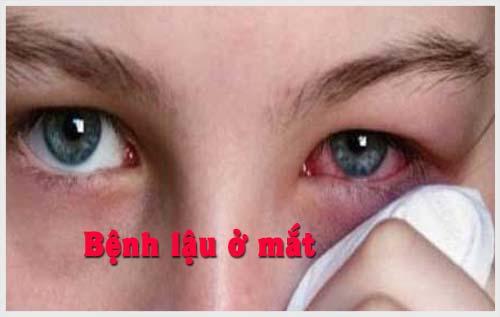 Bệnh lậu ở mắt và cách điều trị