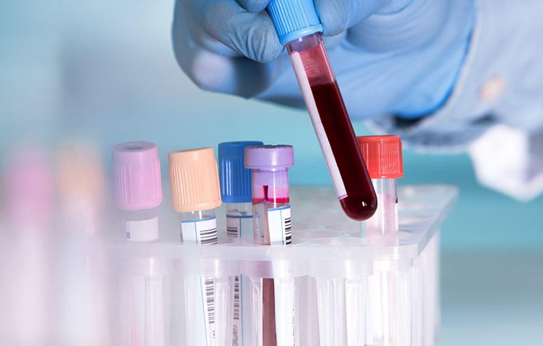 Khám bệnh giang mai cần xét nghiệm gì?