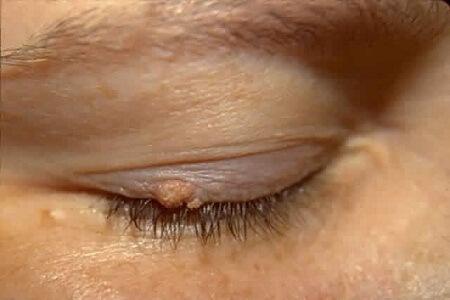Bệnh sùi mào gà ở mắt