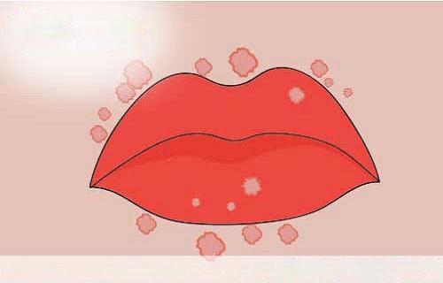 Cách chữa sùi mào gà ở môi