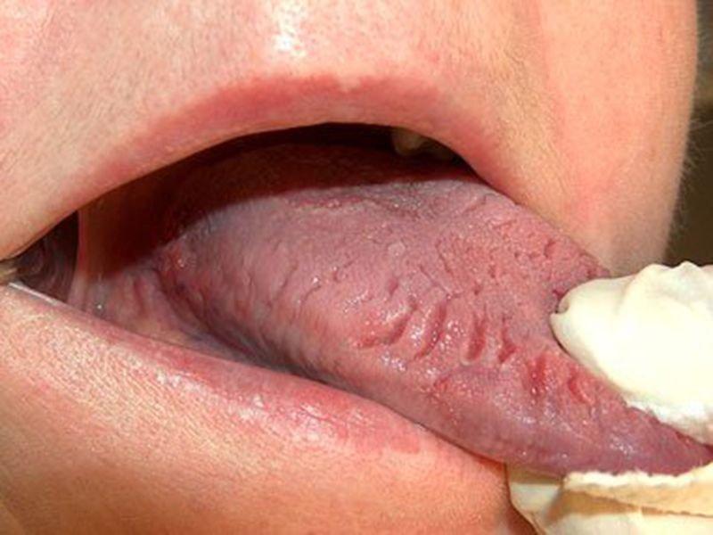 Tác hại của giang mai lưỡi