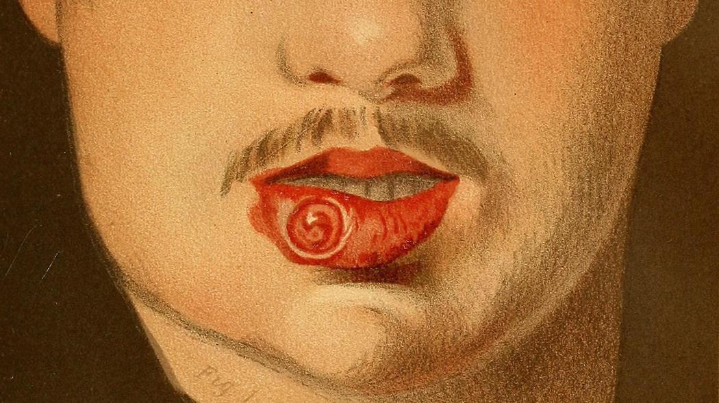 Bệnh giang mai ở miệng có đau không?