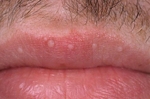 Triệu chứng sùi mào gà ở môi