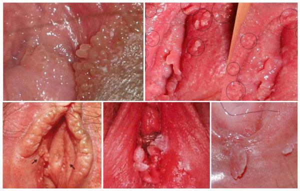 Những triệu chứng sùi mào gà ở vùng kín