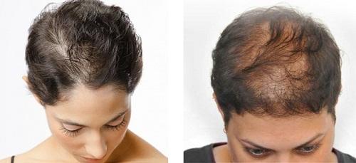 bệnh giang mai gây rụng tóc