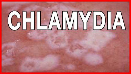 Thực hiện test chlamydia khi nào?