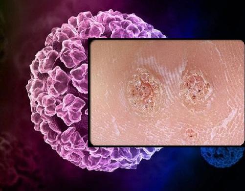 Cách điều trị mọc u nhú tại vùng kín