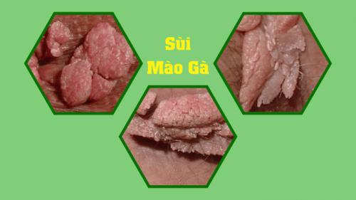 Tác hại của hạt ngọc dương vật và sùi mào gà